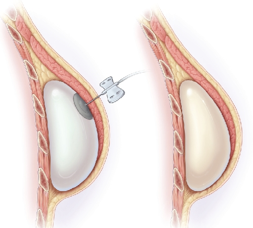 reconstruccion-mamaria-con-expansor-implante
