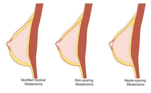 Masectomia